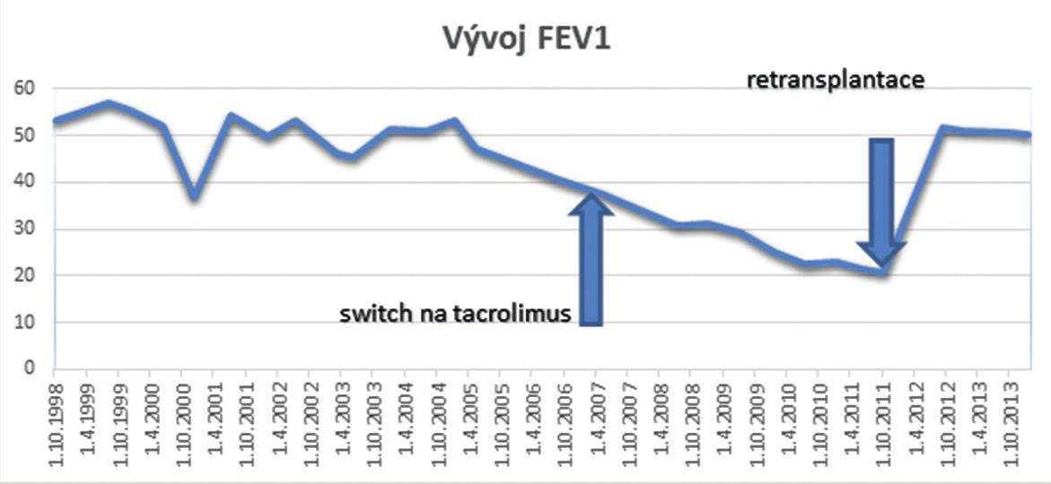 Graf 1. Vývoj FEV1 Graph 1. FEV1 development