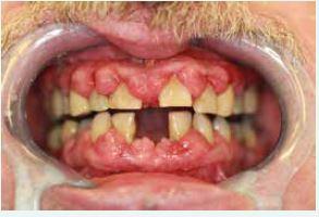 Obr. 4a Plakem podmíněná, léky modulovaná hyperplastická gingivitida a pokročilá parodontitida u obézního muže s nedostatečně kompenzovaným DM2T (67 let). Z archivu autorky