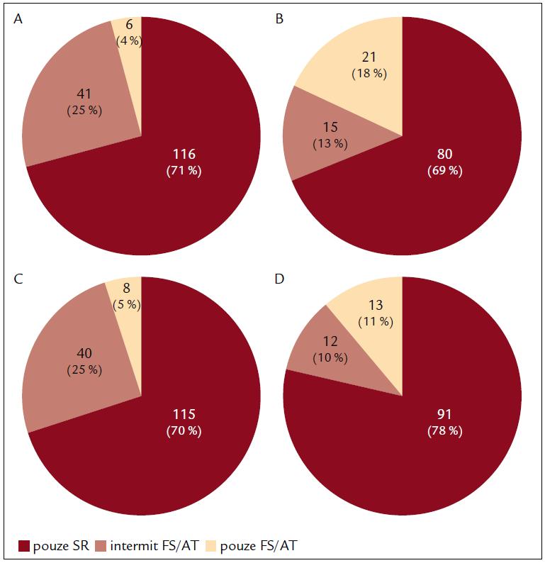Srovnání výskytu sinusového rytmu/recidiv arytmie u pacientů po ablaci paroxysmální FS (A, C) a perzistentní FS (B, D) po 6 měsících (A, B) a 12 měsících (C, D).