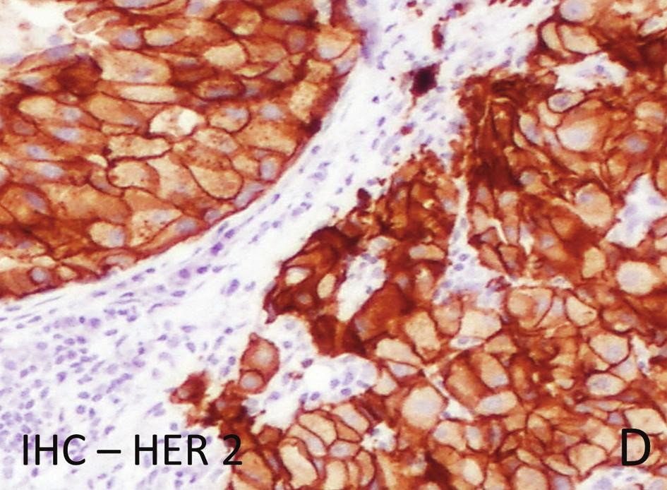 Obr. 1. Následky nesprávné fixace na kvalitu histologického barvení, imunohistochemického vyšetření a in situ hybridizace genu HER 2 u invazivního karcinomu prsu: d) Stejný nádor v jehlové biopsii s jednoznačnou 100 % membránovou pozitivitou HER 2 skore 3+. Fig. 1: Consequences of incorrect formalin fixation on the quality of histological staining, immunohistochemistry and in situ hybridization of the HER2 gene in invasive breast carcinoma: d) The same tumour in a needle-core biopsy with unequivocal strong circumferential membrane staining in 100% of tumour cells – score 3+
