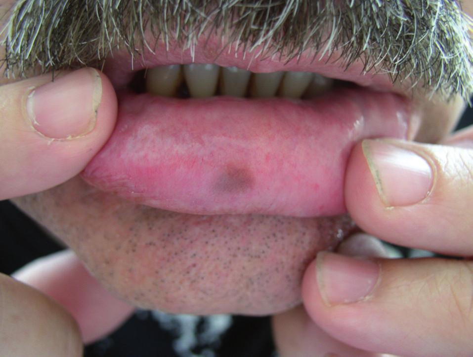 Orálna (labiálna) melanotická makula – klinický obraz.