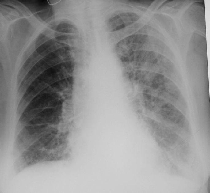 Reinfekce Chlamydií pneumoniae u starší pacientky. Difúzní retikulonodulární kresba oboustranně, v horní polovině levého plicního pole splývající cárovité stíny.