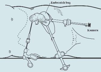 Vložení preparátu do sáčku (Endocatch bag<sup>®</sup>).