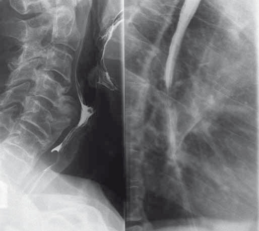 Polykací akt a RTG jícnu s nálezem přemosťujících osteofytů (kazuistika 1).