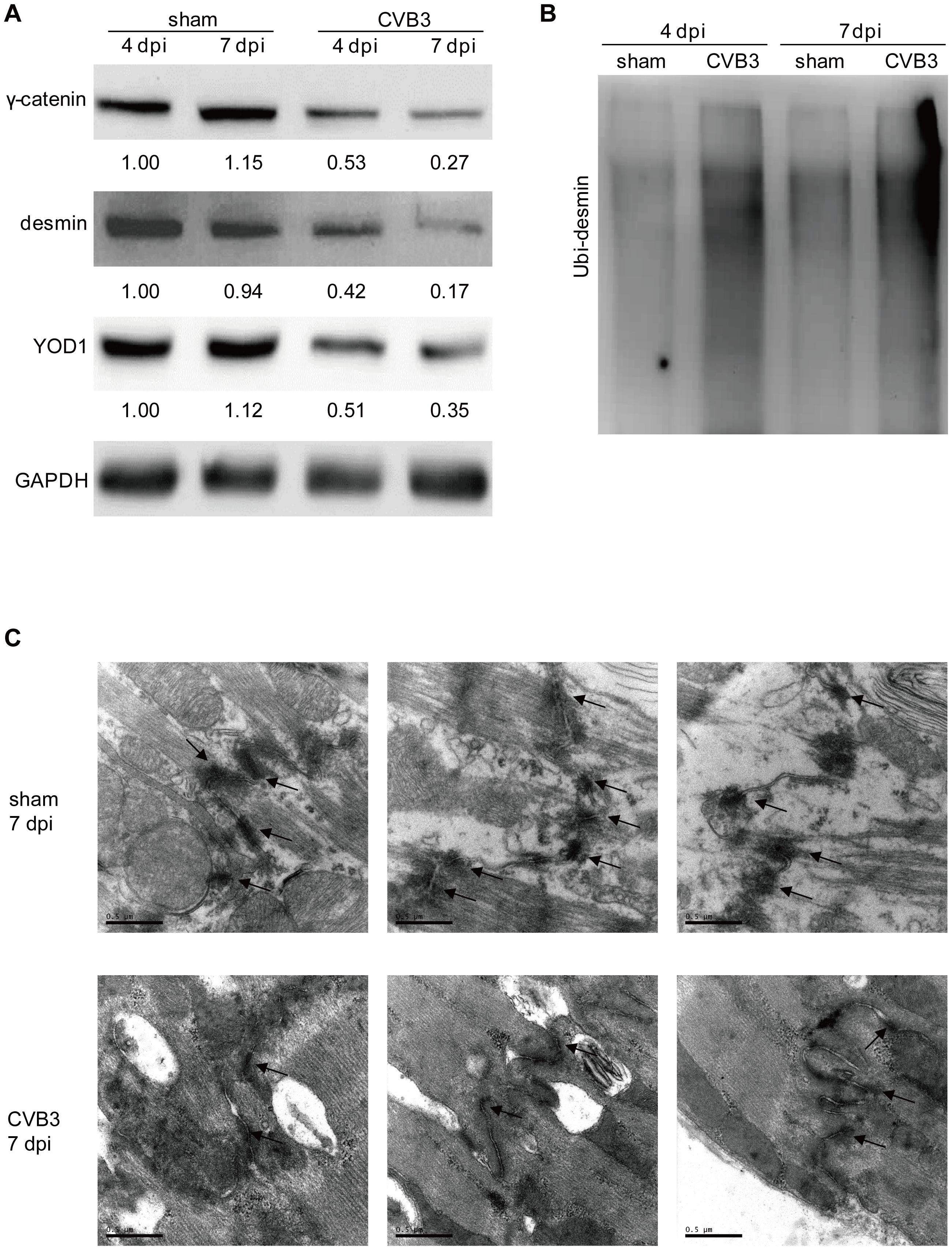 CVB3 infection disrupts desmosomes <i>in vivo</i>.