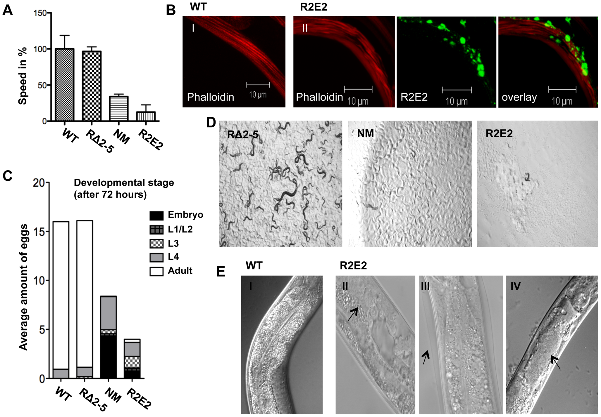NMm::YFP and R2E2m::YFP aggregates are highly toxic.