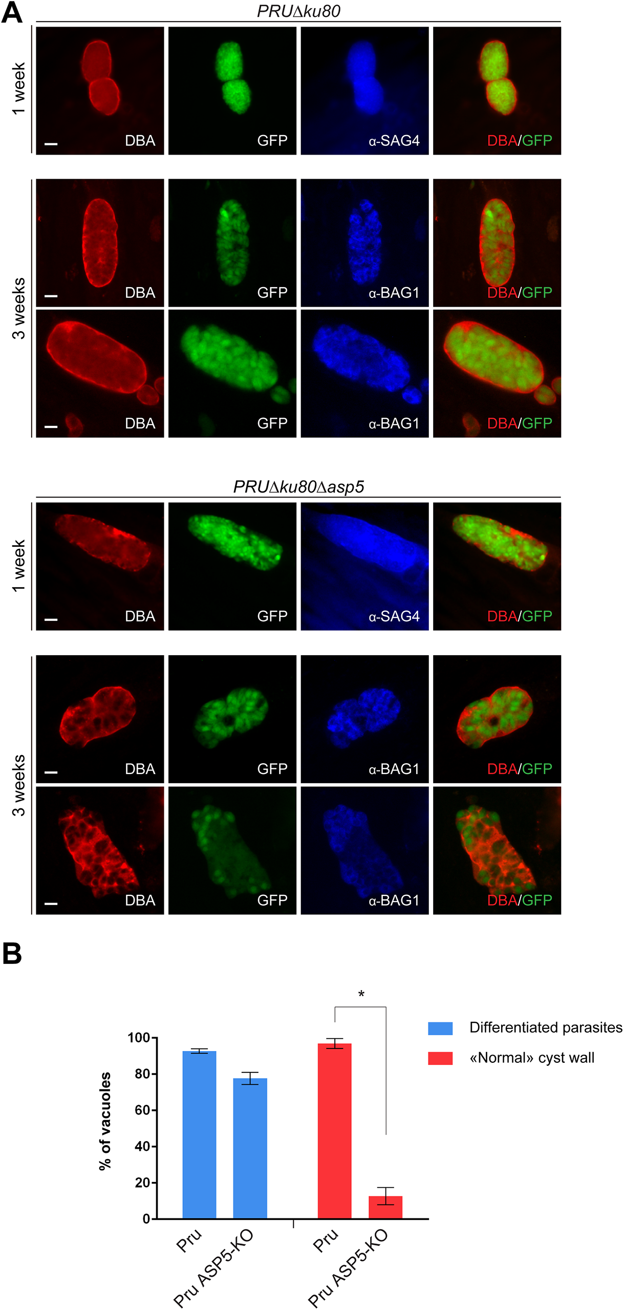 Cyst wall formation is affected in type II parasites lacking ASP5.