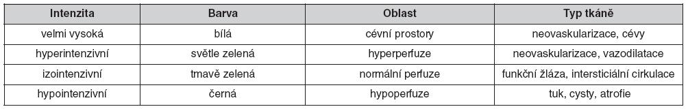 Stupně intenzity signálu při CTLM vyšetření