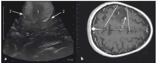 Astrocytom grade II frontálně vpravo – sonografický a MR T1W obraz. Fig. 10. Low-grade astrocytoma (grade II) of the right frontal lobe – ultrasound and MRI T1W images.