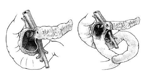 Bernská modifikácia riešenia chronickej pankreatitídy v oblasti hlavy pankreasu: Lokálna resekcia hlavy pankreasu bez transsekcie pankreasu a bez laterálnej pankreatikojejunoanastomózy so zachovaním duodena (32)