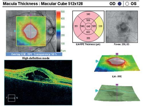 OCT centrální krajiny oka pravého. Serózní ablace neuroretiny, hyperreflektivní zánětlivé ložisko v úrovni vrstvy IS/OS fotoreceptorů, edém neuroretiny.