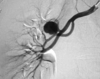 Aneuryzma renální tepny v hilu pravé ledviny.