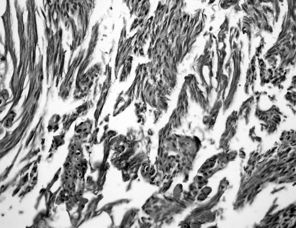 Termické artefakty. Vyznačují se významným protažením buněk i jader, pro bližší hodnocení jsou tyto části materiálu ztraceny (HE, 100krát)