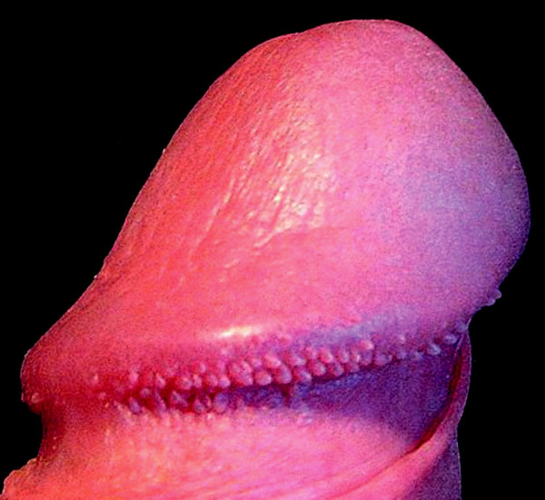 Papillae coronae glandis.