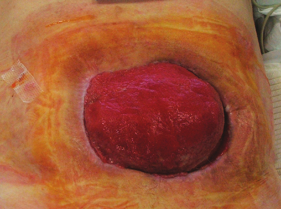 Situace 3 týdny po rekonstrukční operaci GIT s ponechaným laparostomatem (pacient č. 9) Fig. 5 The same patient 3 weeks after his GIT reconstruction procedure with laparostomy (patient No 9)