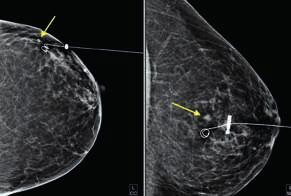 Mamogram s vodičem v CC a ML projekci. Malý tumor označen šipkou