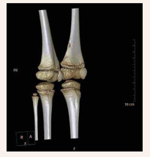 3D-rekonštrukcia CT