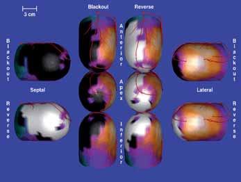 Srovnání pozátěžové a klidové perfúzní scintigrafie. Černě pozátěžová ischemie, bíle viabilní myokard.