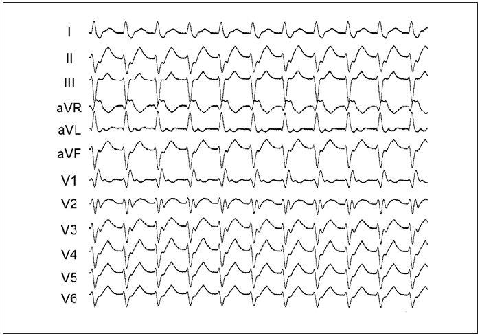 Typická morfologie komplexů QRS při idiopatické fascikulární formě KT z oblasti zadního svazečku levé komory. Místo malého okruhu reentry je uloženo v střední části septa a tomu odpovídá obraz blokády pravého raménka Tawarova s relativně štíhlými komplexy QRS a sklonem osy doleva.