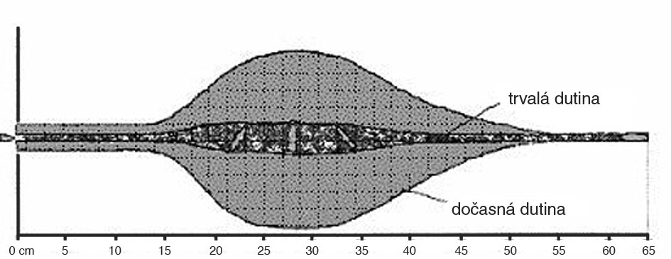 Profil rány střely 7,62 x 51 mm. FMC Fig. 4. Wound profile of bullet Cal. 7.62 x 51 FMC