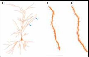 a – hustota dendritických výběžků pyramidového neuronu hipokampu; b – bez hormonální substituce; c – s hormonální substitucí.