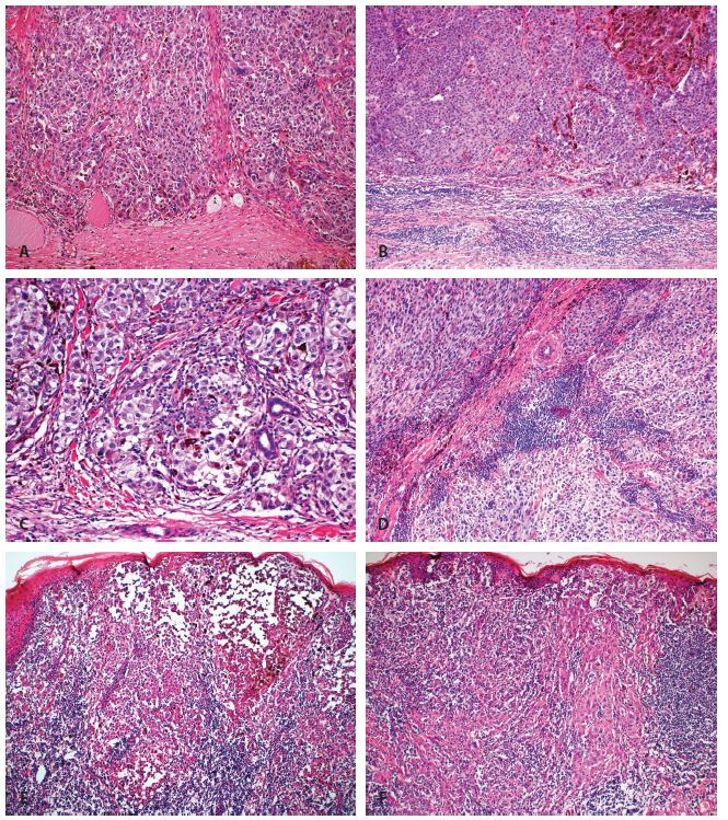 """Hodnocení zánětlivé celulizace u maligního melanomu dle Clarka: A. Žádná zánětlivá celulizace (kategorie """"absent"""") (zvětšení 100 x). B. Zánětlivá celulizace v přilehlém stromatu, bez infiltrace nádoru (kategorie """"absent"""") (zvětšení 100 x). C. Fokální mírná zánětlivá celulizace (kategorie """"non-brisk"""") (zvětšení 200 x). D. Fokální výraznější zánětlivá celulizace (kategorie """"non-brisk"""") (zvětšení 100 x). E. Splývající zánětlivá celulizace zejména v periferii nádoru (kategorie """"periferní brisk"""") (zvětšení 40 x). F. Splývající zánětlivá celulizace ve většině oblastí nádoru (kategorie """"difúzní brisk"""") (zvětšení 40 x)."""