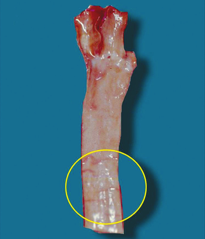 Amussatovy trhliny patrné ve vnitřní stěně pravé společné krkavice u případu oběšení (oblast jejich výskytu vymezena kružnicí).