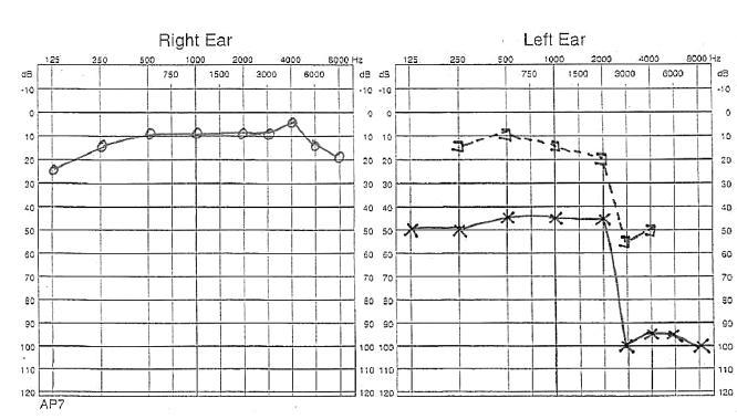 Audiogram nemocné sedm dnů po zasažení bleskem. Pokles vzdušného vedení vlevo je následek traumatické perforace bubínku, pokles kostního vedení ukazuje na poškození vnitřního ucha a sluchového nervu.