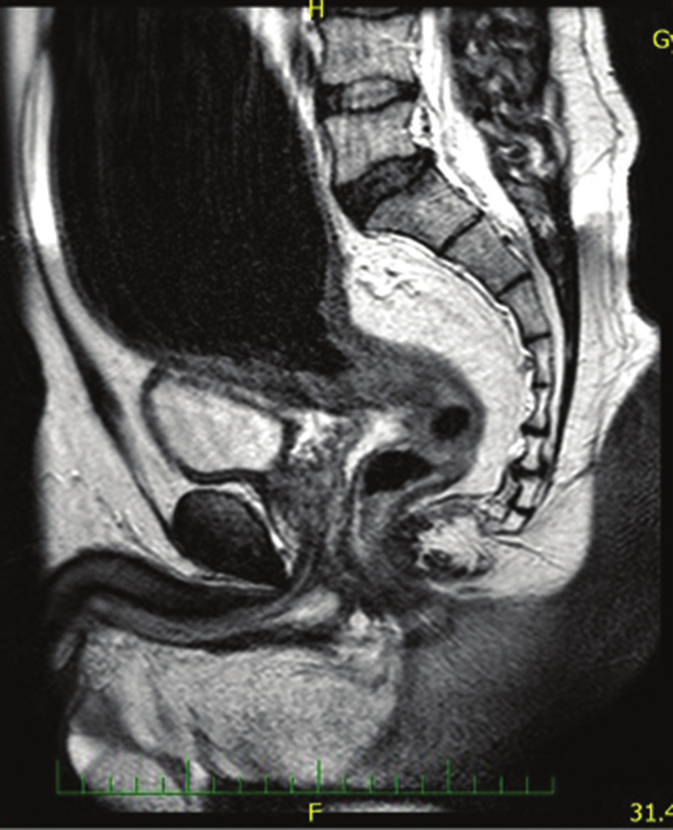 Magnetická rezonance u pacienta 1 s obrazem rektální formy H. ch.