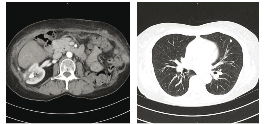 a 2: Restagingové CT po operaci: nové ložisko v místě po resekci tumoru vpravo, meta ložisko v uzlině retrokaválně a progrese nádorového postižení plic