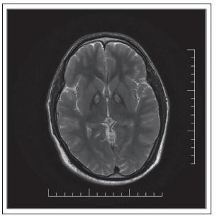 """Obr. 1. MR mozgu pacienta s potvrdenou mutáciou v géne pre PANK 2 – v T2 vážení v globus pallidus internus obojstranne prítomné hypointenzity s centrálnym hyperintenzitným regiónom (príznak """"eye of the tiger"""")."""