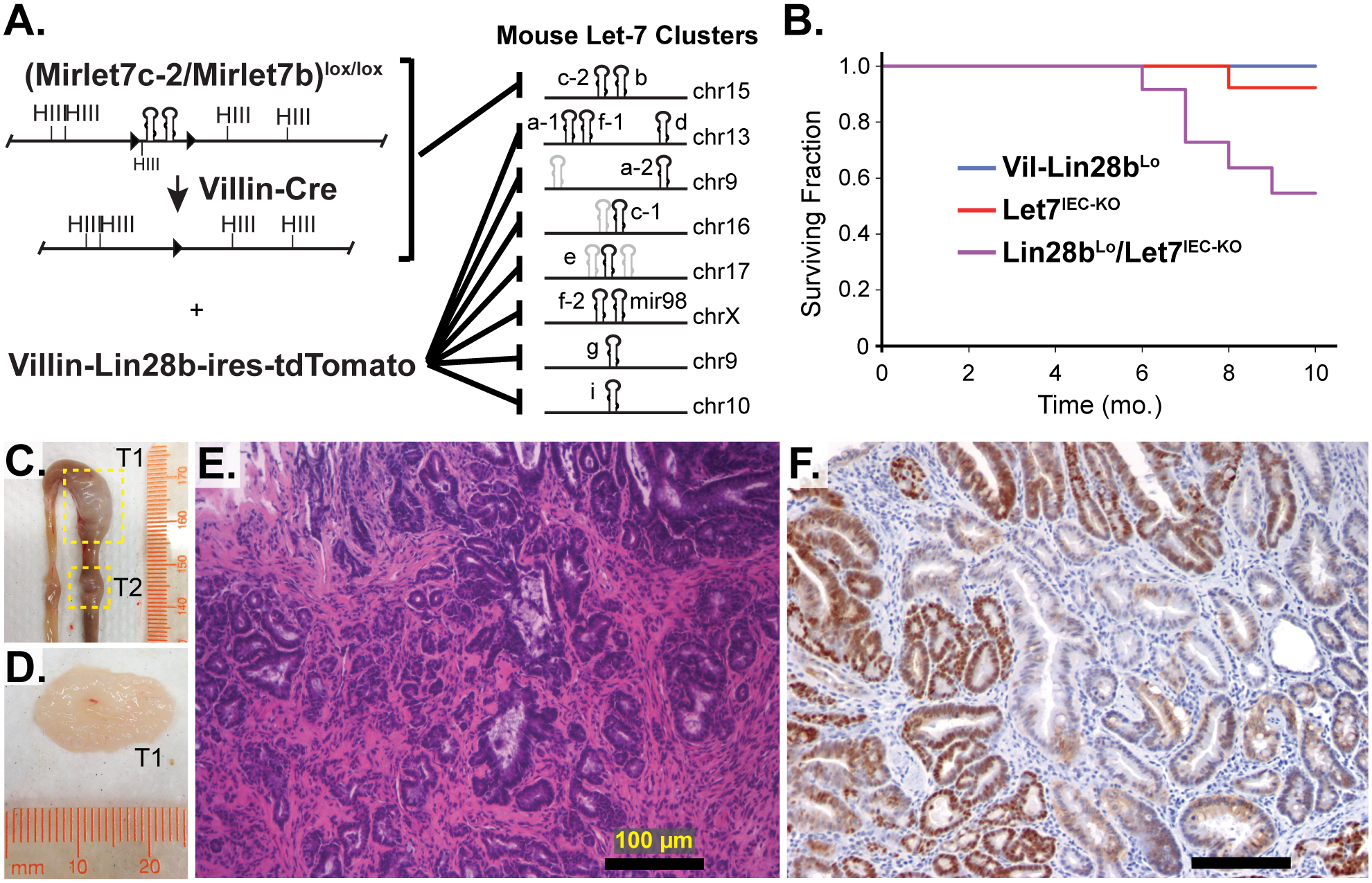 Comprehensive depletion of all Let-7 miRNAs leads to the development of intestinal adenocarcinomas.