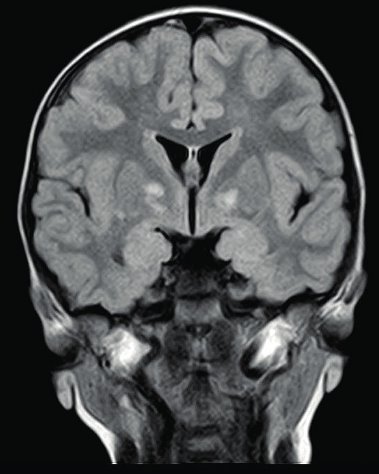 Hamartogenní ložiska v globus pallidus, T2, FLAIR 
