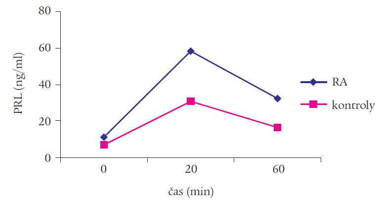Hodnoty PRL po i.v. stimulácii TRH u pacientov s RA a u kontrol.