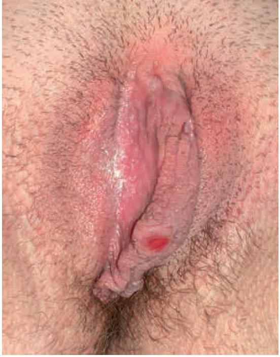 Primarní syfilis – ulcus durum – erozivní typ