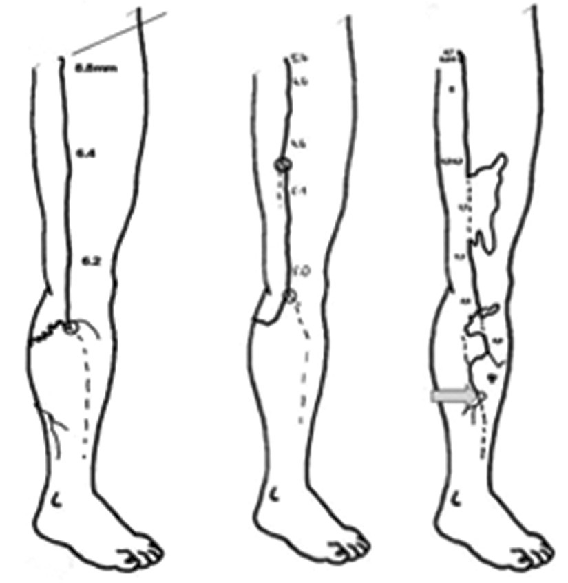 Detailní sonografické vyšetření, šipka označuje distální bod insuficience VSM Fig. 3: Detailed sonographic examination, the arrow points at the distal point of GSV insufficiency