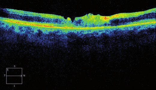 Horizontální transfoveolární OCT sken, pooperační nález 2 měsíce po PPV