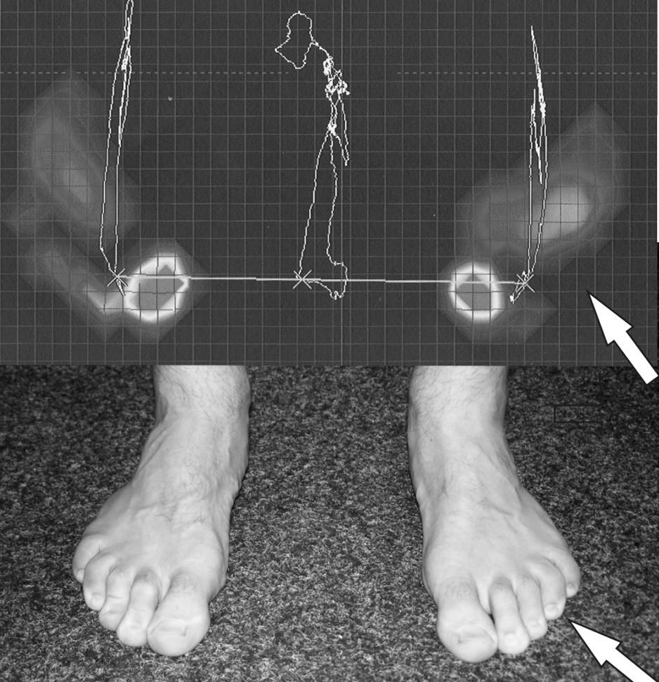 Záznam Vélova testu z FDM desky a fotografie: pacient se naklání dopředu, aniž by ohýbal trup či zvedal paty od podložky. Přitom automaticky dochází ke flexi prstů. Na postižené straně (zde na LDK) je tento reflex méně výrazný a prsty vyvíjejí menší tlak do podložky.