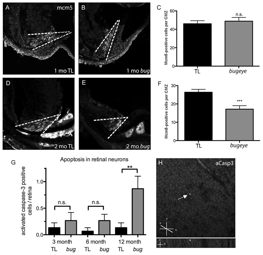 Retinal proliferation and apoptosis.