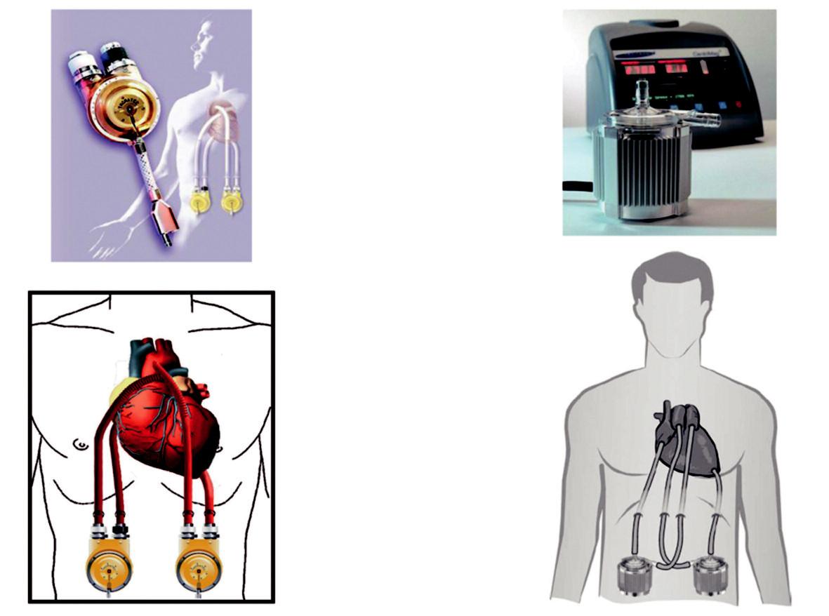 Mechanické pumpy Vlevo – parakorporální systém Thoratec PVAD s pulzatilním průtokem pro střednědobé použití; vpravo – systém LevitronixCentriMag VAD pro krátkodobé použití. Obě pumpy lze použít jak pro uni-, tak i biventrikulární podporu.