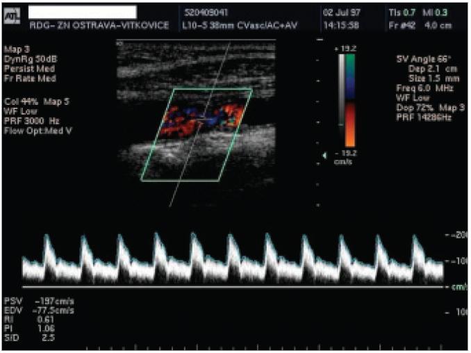 50–69% stenóza a. carotis interna v barevném ultrazvukovém modu s průtokovou křivkou.