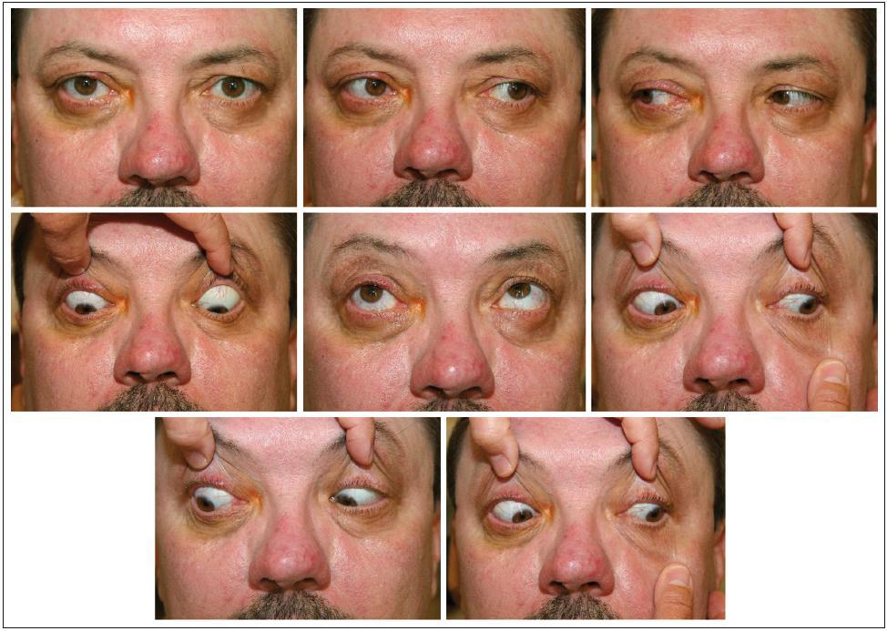 Oční motilita tři týdny pooperačně – mírné omezení jen při pohledu vpravo nahoru.