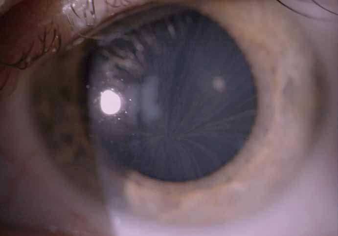 Cornea verticillata, pacient s Fabryho chorobou, krémovitá depozita v povrchních vrstvách rohovky.