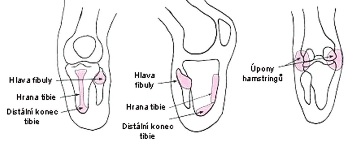Oblasti se zvýšenou citlivostí na zatížení u transtibiálního pahýlu (upraveno podle 1, s. 682).