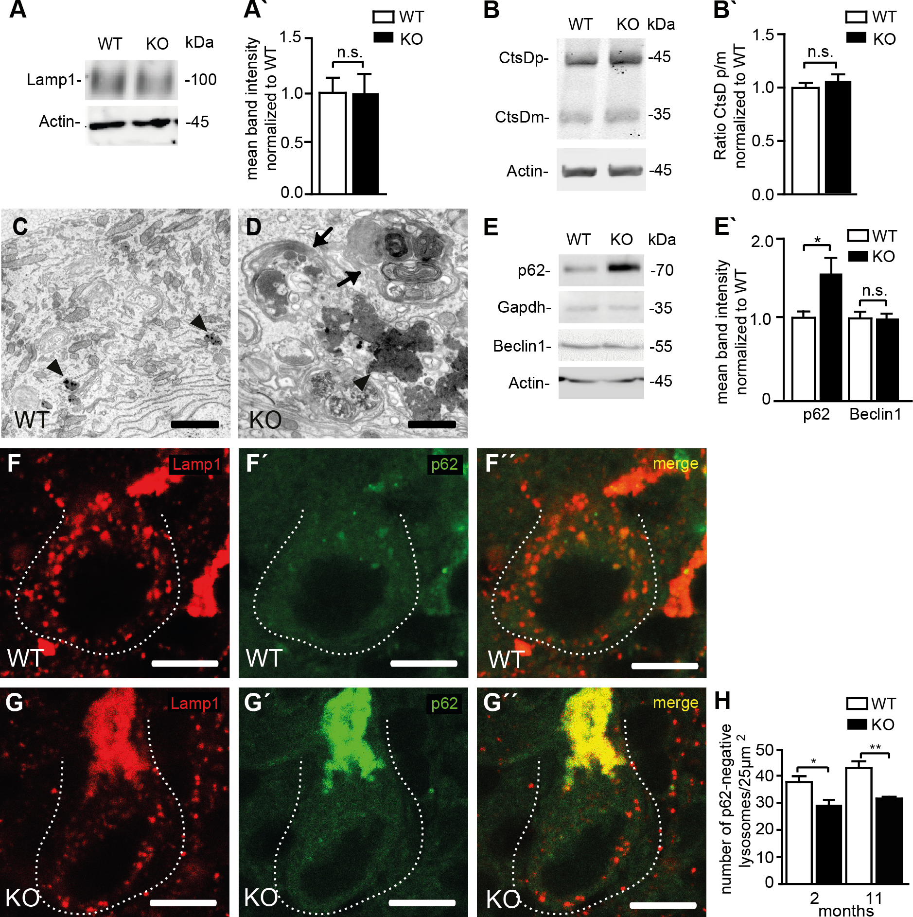Reduced lysosome numbers in Purkinje cells of Spatacsin knockout mice are consistent with impaired autophagic lysosome reformation.