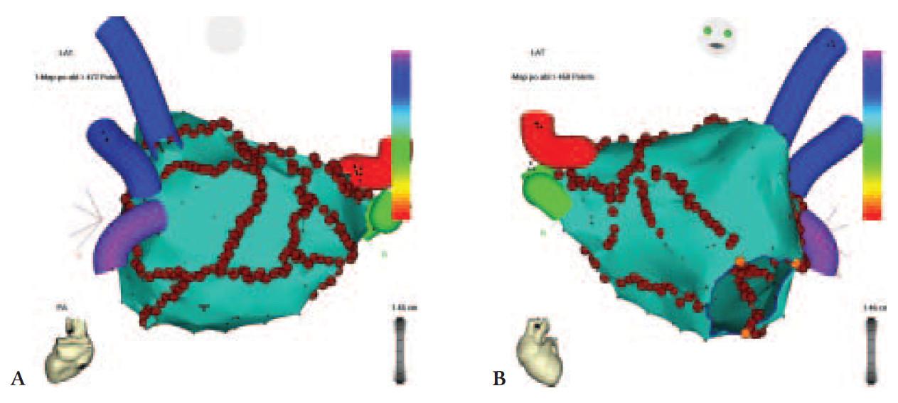Elektroanatomická mapa levé síně s katetrovou ablací pro fibrilaci síní.