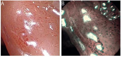 Dlaždicobuněčný karcinom hlasivky v HDTV zvětšovací endoskopii v bílém světle (A) a v NBI (B). Kompletní rozpad cévní mikroarchitektury a nepravidelnosti IPCL jsou charakteristické pro karcinom.