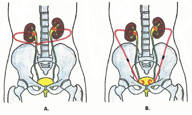 Schéma extraanatomického stentu A – oboustranný nefrokutánní bypass; B – oboustranný nefrovezikální bypass Fig. 1. Scheme of extra-anatomic stent A – bilateral nephocutaneous bypass; B – bilateral nephrovesical bypass