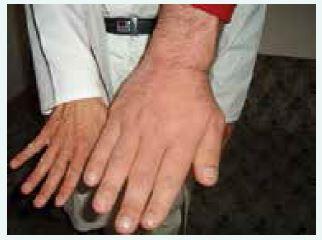 Vzhled ruky pacienta s gigantoakromegalií v porovnání s rukou normální (z archivu autora)