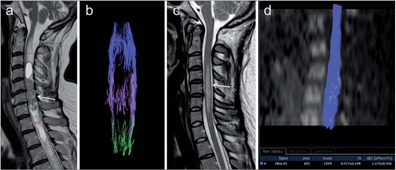 """3D traktografie u dvou pacientů s postižením míchy různé etiologie.  Obr. 2a, b) Pacientka s míšním tumorem. a) T2 vážený obraz v sagitální rovině, šipka znázorňuje vlastní tumorózní ložisko, v okolí patrný edém a známky hydrosyringomyelie. Červené linie značí úroveň umístění tří různých oblastí zájmu pro traktografii – jedna uprostřed vlastního tumorózního ložiska, další dvě kraniálněji, resp. kaudálněji. b) Traktografie za použití tří oblastí zájmu demonstruje zřetelné roztlačení a přerušení míšních drah (projekce v koronární rovině). Ze žádné ze zvolených oblastí zájmu nebylo možné vystopovat souvislé dráhy probíhající přes celou oblast tumoru, jedná se zde o opakované rekonstrukce technikou """"single-ROI"""".  Obr. 2c, d) Pacientka s dg. roztroušené sklerózy. c) T2 vážený obraz v sagitální rovině, patrna je hyperintenzní míšní léze (šipka). Červená linie značí umístění jedné oblasti zájmu pro traktografii přibližně uprostřed postižené oblasti. d) Traktografie míšních drah na podkladě izotropního DWI obrazu (sagitální rekonstrukce), není zde patrna abnormalita průběhu míšních traktů, které byly spojitě rekonstruovány z jediné oblasti zájmu umístěné do oblasti léze."""